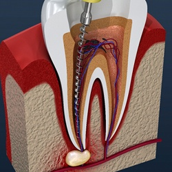A diagram of a root canal