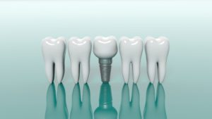 dental implants in Calimesa next to molars