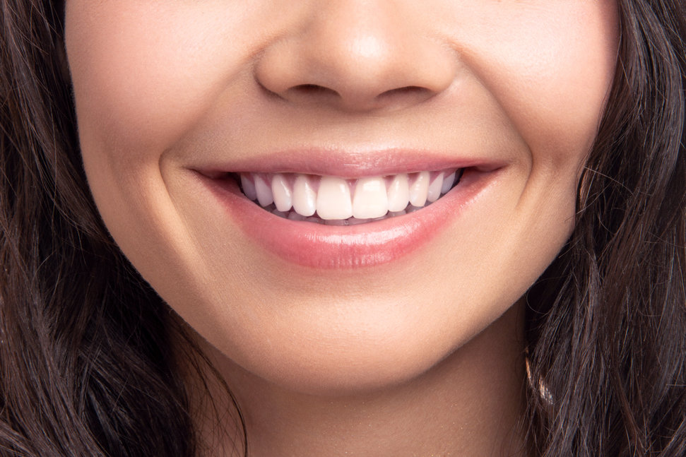 Clean smile provided by a cosmetic dentist.